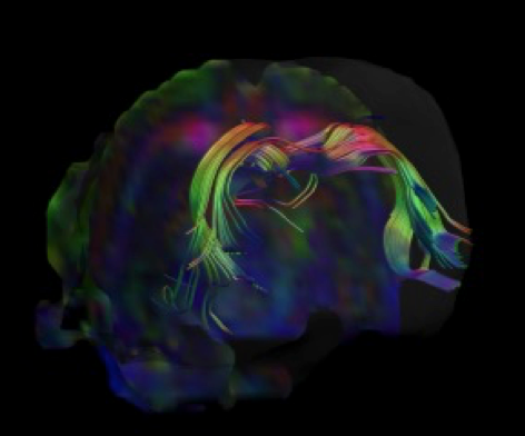 Graphic generated by fibre tractography