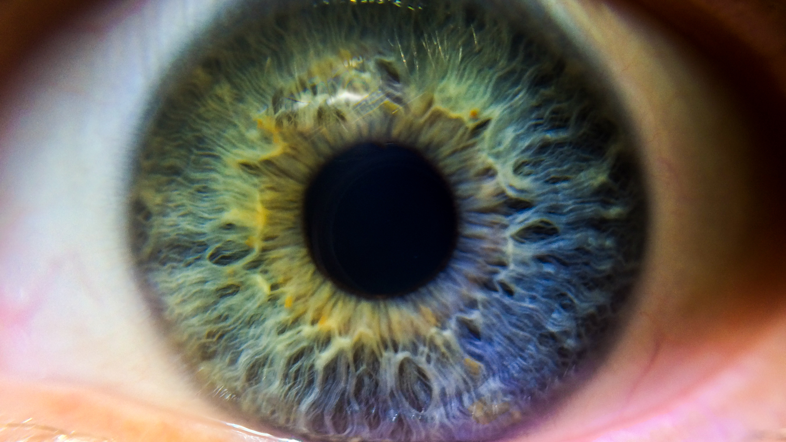 First Nhs Led Clinical Trial For Thyroid Eye Disease News